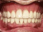 Dentures After